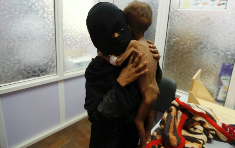 yemen-starving-child4-800x504
