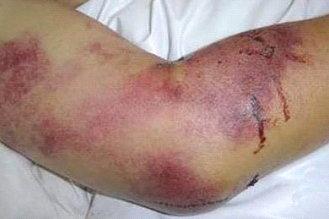 crimeancongo-hemorrhagic-fever-67723.jpg