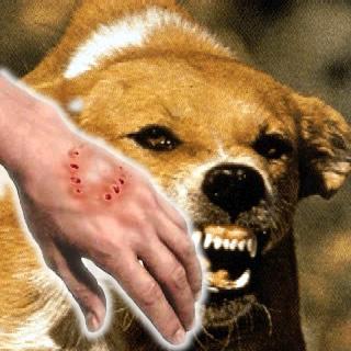 human_rabies.jpg