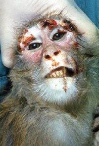 monkeypox.jpg