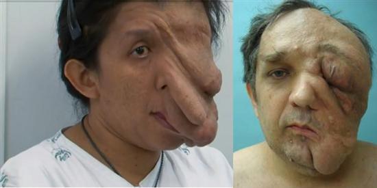 giant-facial-tumor