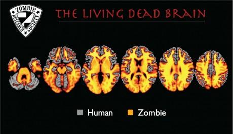 zombiebrain-460x265.jpg