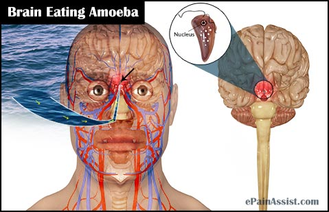 brain-eating-amoeba.jpg