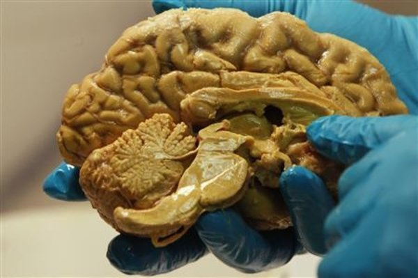 autopsy-confirms-n-h-patient-died-of-rare-brain-disease