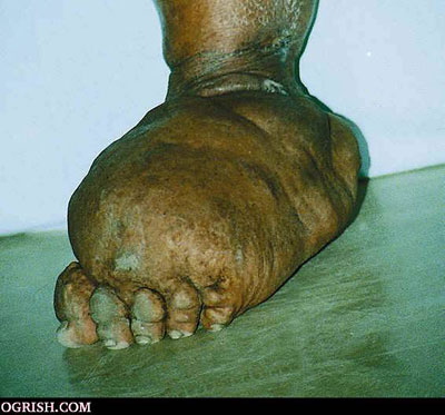 elephantitis_foot.jpg