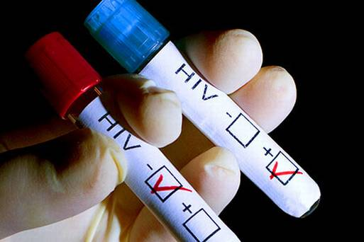 hiv-test-stock.jpg