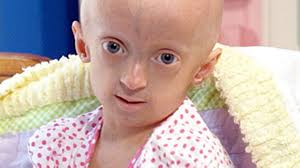 BENJAMIN BUTTON DISEASE: PROGERIA AND ALL ITS CURIOUS ...